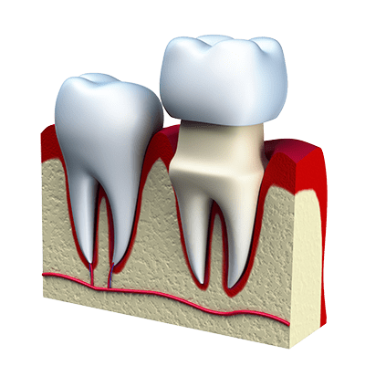 Complete-Smile-Dental-crown-installation-the-gap