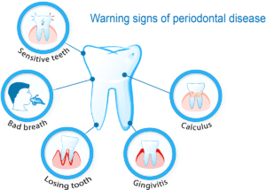 Complete-Smile-dental-The-Gap-tooth-problem-warning-sign-of-periodontal-disease