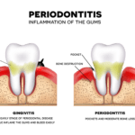 Complete-Smile-dental-the-gap-dentist-types-of-periodontitis