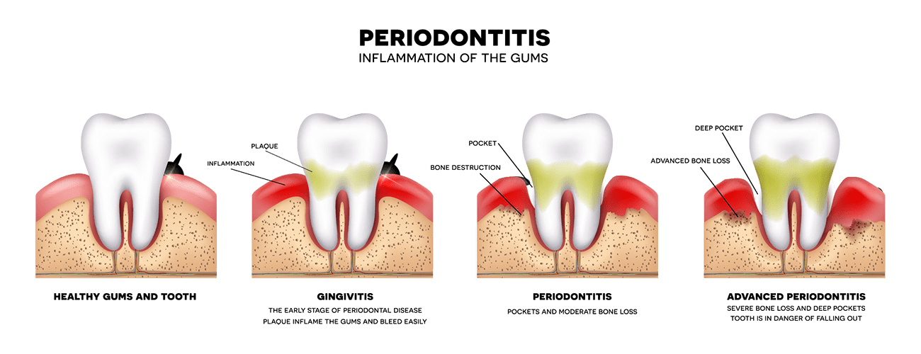 What are the different types of gum disease the gap dentist complete smile dental the gap dentist types of ccuart Image collections