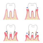 complete-smile-dental-periodontal-disease-losing-teeth