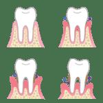 complete-smile-dental-periodontal-disease-losing-teeth