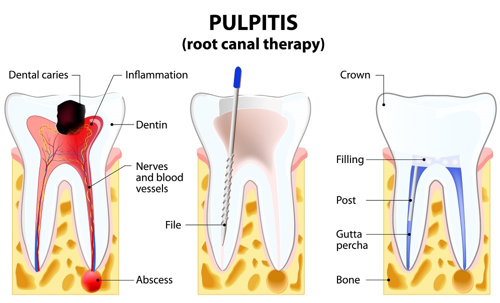 complete-smile-dental-root-canal-treatment