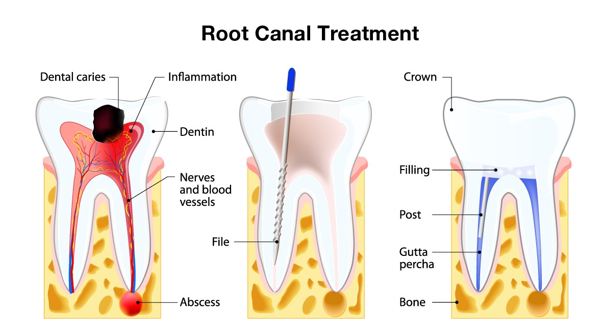 healthy-smile-dental-root-canal-therapy