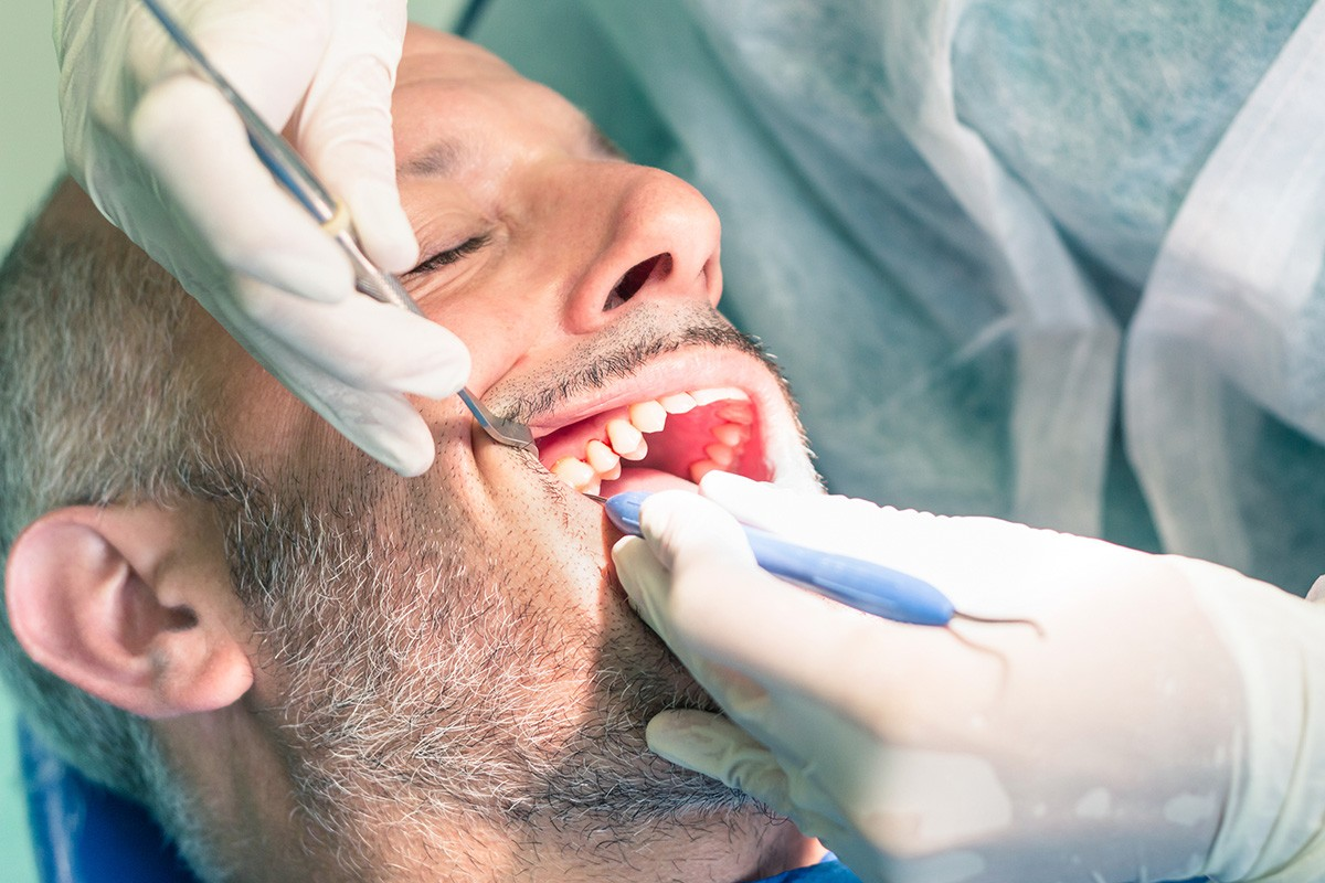 Why do root canals need therapy?