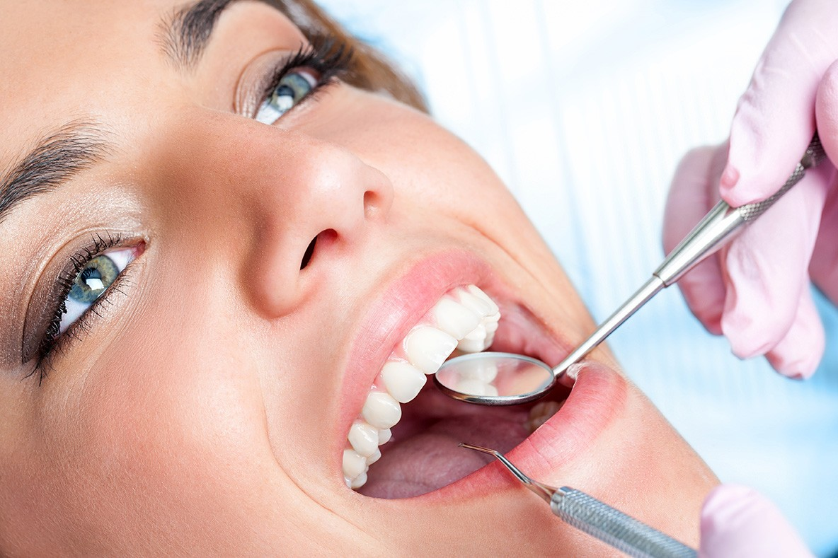 complete-smile-dental-in-chair-tooth-whitening-Brisbane