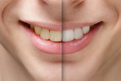 complete-smile-dental-in-chair-tooth-whitening-the-gap