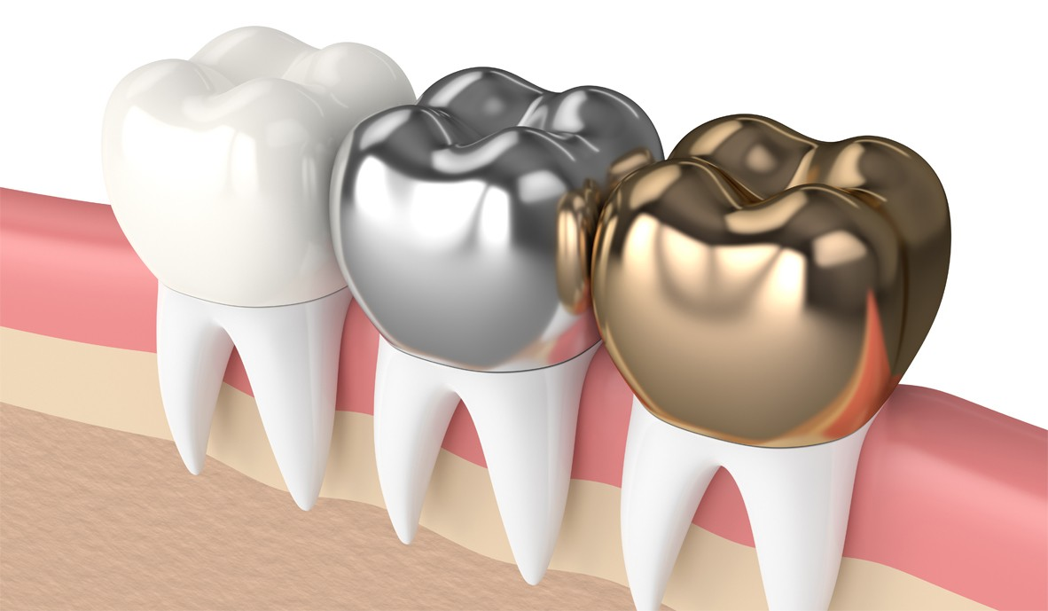 The-gap-dentist-Crowns-dental-clinic
