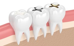 Complete-smile-Dental-fillings-The-Gaps